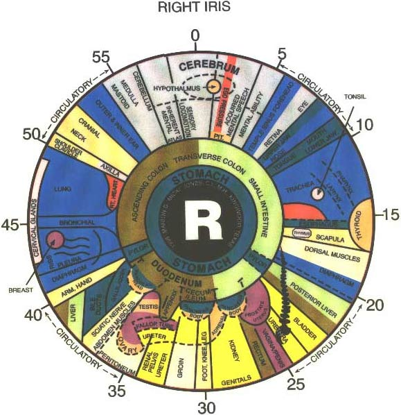 Iridology To Determine Potential Health Problems Body Peace
